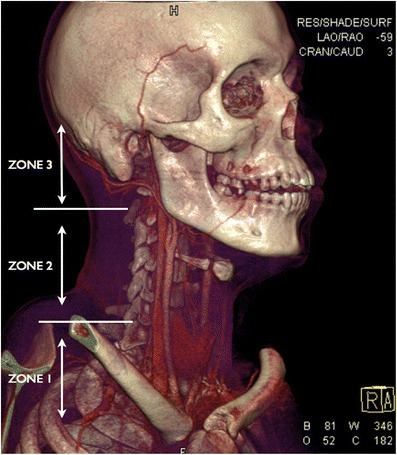 File:Neck zones.png