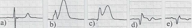 File:STEMI Progression.jpg