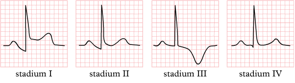 File:Stadia pericarditis.png