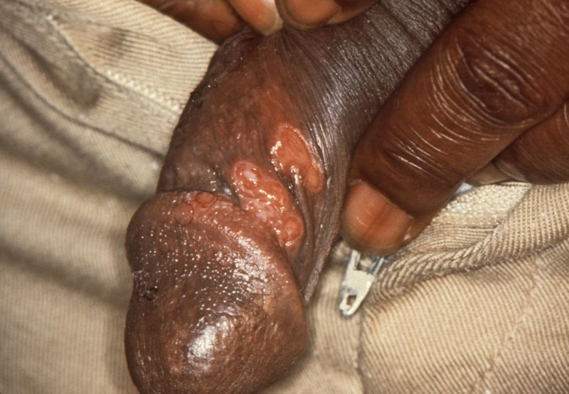 File:Chancres on the penile shaft due to a primary syphilitic infection caused by Treponema pallidum 6803 lores.jpg