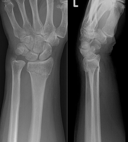 File:Collesfracture.jpg