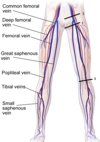 Compression of Lower Extremity Veins.png