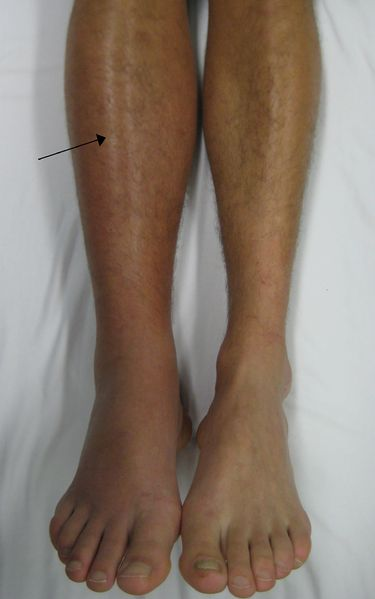 File:Deep vein thrombosis of the right leg.jpg
