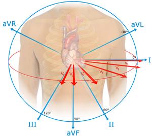 STsegment elevation myocardial infarction  WikEM