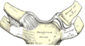 Sternoclavicular dislocation.png